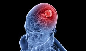 Существует несколько видов кист головного мозга, каждая из которых имеет свои особенности