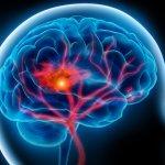 Как распознать геморрагический инсульт и оказать первую помощь?