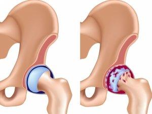 Асептический некроз головки бедренной кости – это серьезное и опасное заболевание тазобедренного сустава