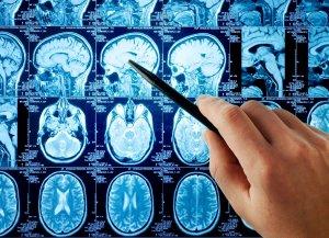 МРТ позволяет оценить размер, объем и локализацию кровоизлияния