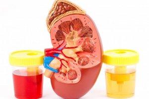 Красная моча: причины и возможные заболевания