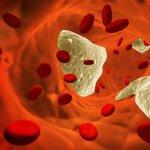 Препараты, рецепты и продукты для снижения уровня холестерина в крови