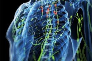 Анализы при лимфоме: диагностика, типы и стадирование заболевания