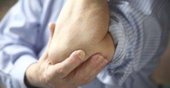 Боль в суставах при криоглобулинемии