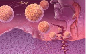 ВПЧ-инфекция и рак
