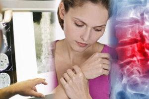 Метастазы в кости: симптомы, диагностика, лечение, прогноз