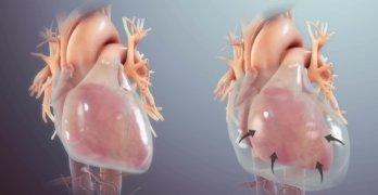 жидкость вокруг сердца