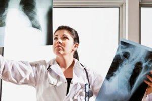 Что такое саркоидоз, чем он опасен и как его диагностируют?