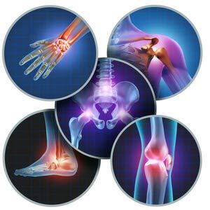 Суставной синдром при псориатическом артрите
