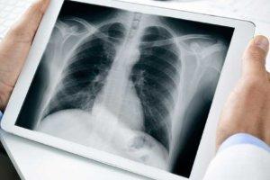 Бронхиальная астма – анализы и другие методы исследования, необходимые для постановки диагноза и оценки эффективности проводимого лечения
