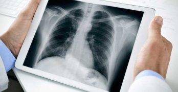 диагноз бронхиальной астме