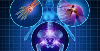 диагностика псориатического артрита.