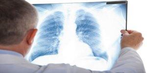 диагноз бронхиальной астмы