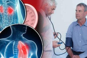 Синдром Гудпасчера: диагностика и лечение очень редкого заболевания, поражающего почки и легкие