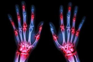 Анти-ЦЦП (Anti-CCP, Анти-ЦЦП-АТ, АЦЦП) – лабораторная диагностика раннего ревматоидного артрита