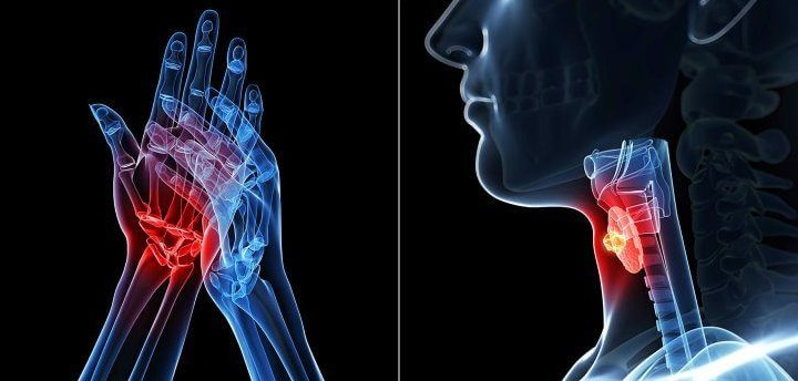 Ревматоидный артрит и аутоиммунные тиреопатии
