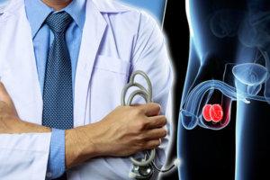 Подозревается тестикулярный рак (рак яичка) — какое обследование назначит врач