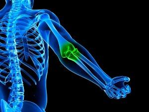 МРТ локтевого сустава — все, что нужно знать об обследовании