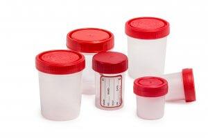 Специальные стерильные контейнеры для сбора мочи на анализ