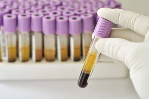 Анализ крови на АЛТ — норма и отклонение фермента