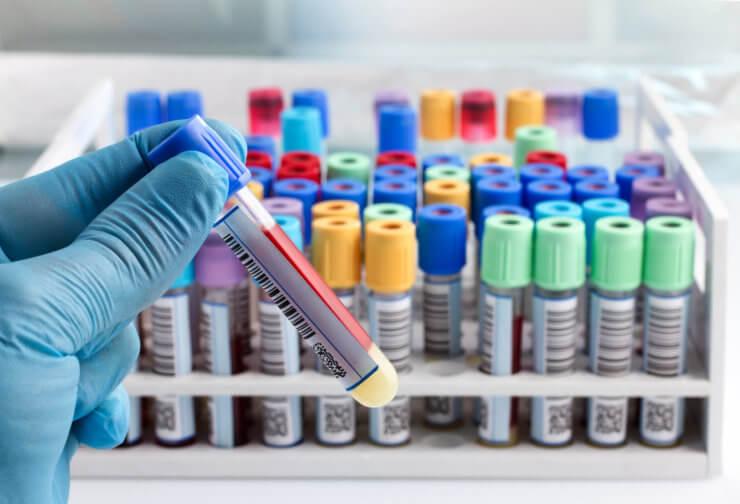 Когда назначают биохимический анализ крови?