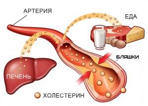 Что влияет на содержание общего холестерина в крови