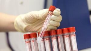 Кровь на онкомаркеры