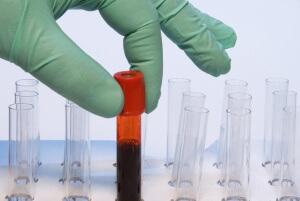 Значение эритроциты и СОЭ в крови