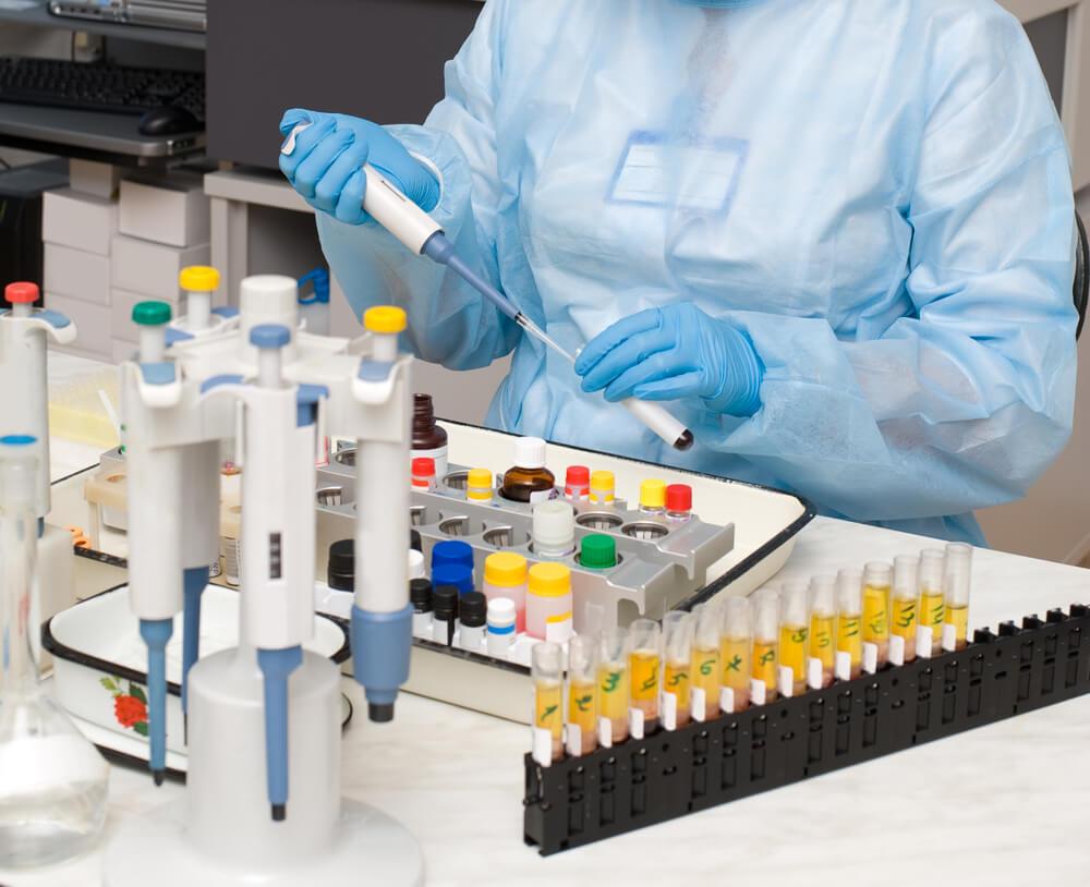 Что представляет собой суточный анализ мочи на белок?