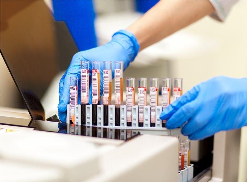 Мононуклеоз — мононуклеары в общем анализе крови