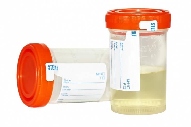 Расшифровка анализа мочи простатит простатит современные антибиотики