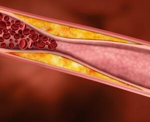 Норма холестерина в организме человека