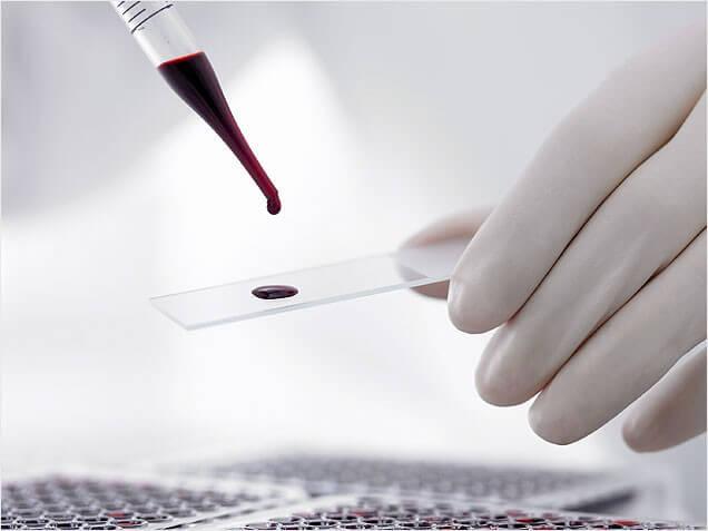 Исследование крови на ПСА свободный: норма и возможные отклонения