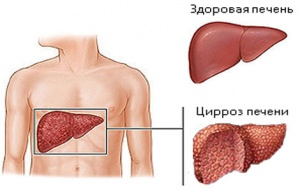 Прогрессирование и особенности развития вторичного билиарного цирроза