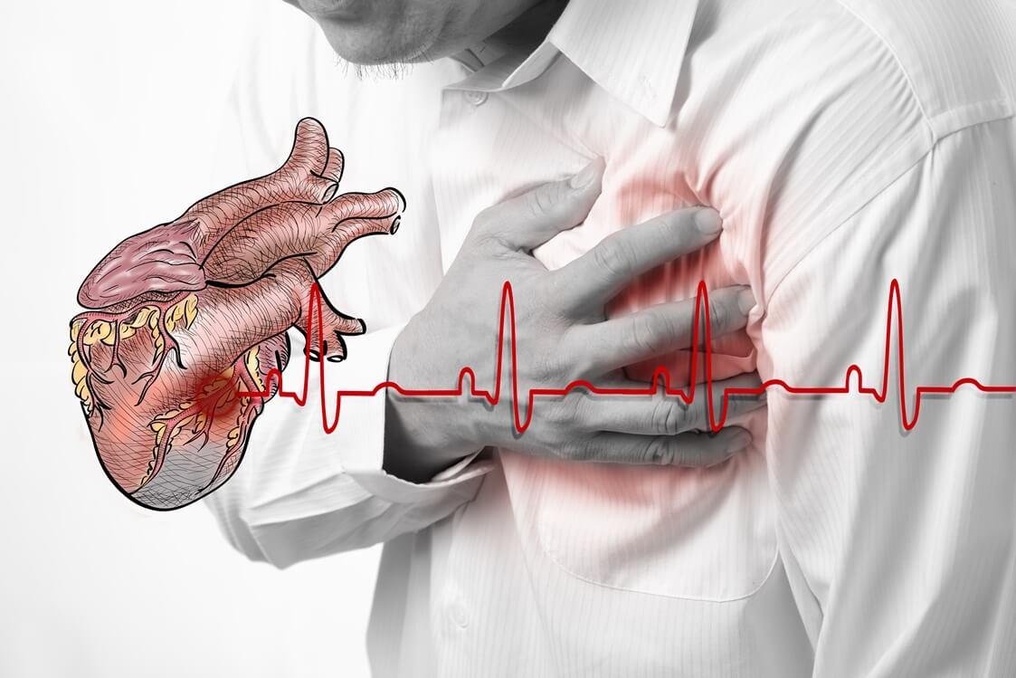 синусовая тахикардия ,артериальная гипертензия 2 ст.   1 ...
