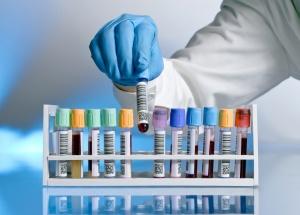 Анализ крови на уровень билирубина: назначение, подготовка и процедура