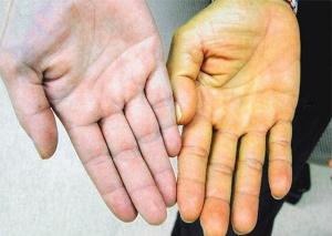 Признаки повышенного билирубина