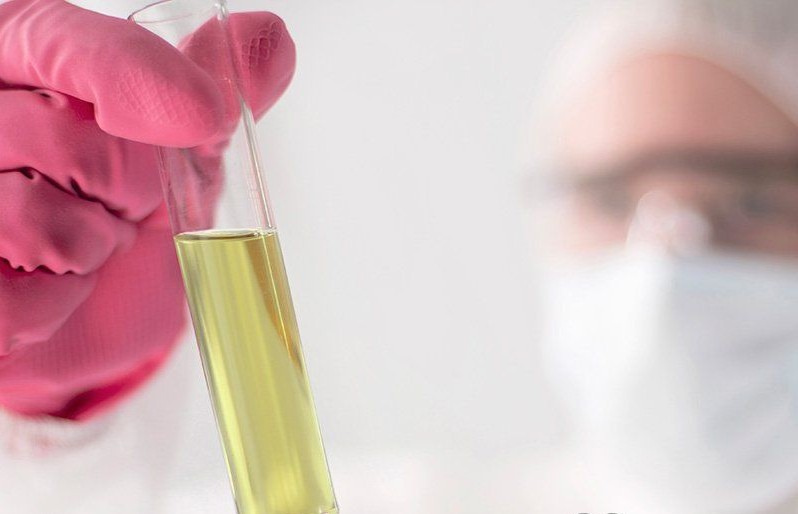 Соли мочевой кислоты в моче: норма, причины повышения и возможные заболевания