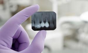 Рентген зубов – это эффективная диагностика стоматологических заболеваний