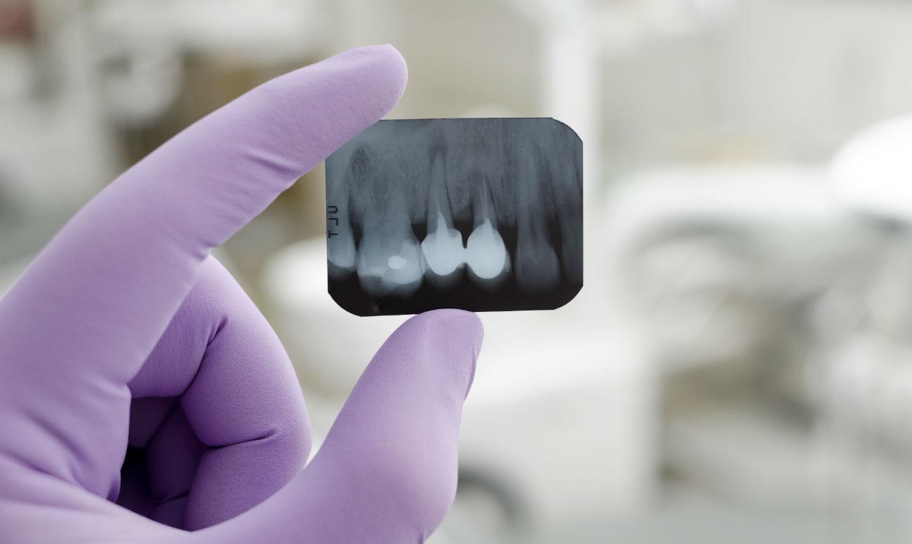 Рентгеновский снимок зубов: виды и расшифровка