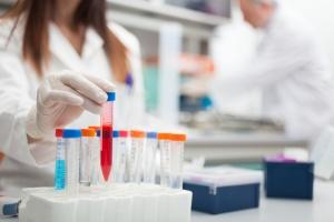 Биохимический анализ крови – это диагностика, которая позволяет оценить работу и состояние внутренних органов человека