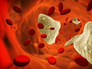 Тромбоцитоз – повышенное содержание тромбоцитов в крови, что повышает вероятность возникновения тромбоза сосудов
