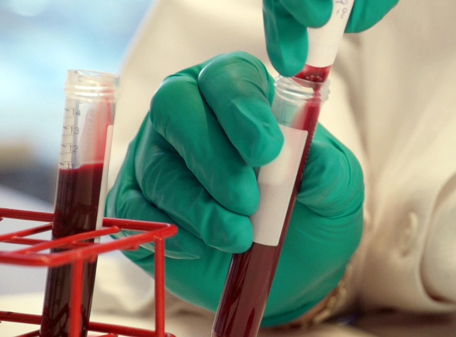"""Как сдавать клинический анализ крови и о чем он может """"рассказать""""?"""