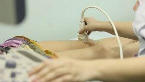 УЗИ вен нижних конечностей – эффективная диагностика варикоза и тромбофлебита