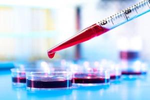 Расшифровка общего анализа крови у женщин: норма и патология