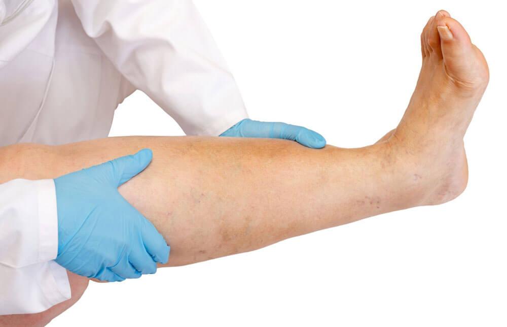 Методика лечения тромбоза поверхностных вен нижних конечностей
