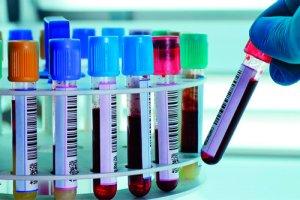 При анализе крови важным является не только наличие онкомаркеров, а и динамика их концентрации