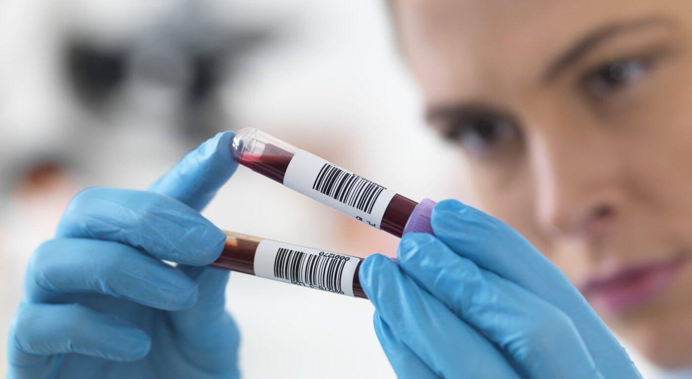 Совместимость групп крови и резус-конфликт при беременности