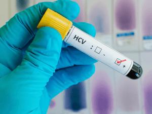 Биохимический анализ крови – эффективная диагностика наличия или отсутствия гепатита С