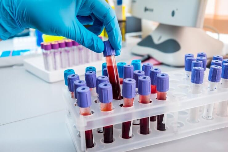 Анализ крови тромбоциты норма